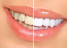 Show Off Your Ultimate Smile #teethwhitening